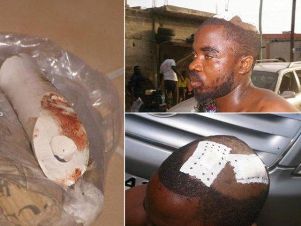 K. Adjiwonou : Sauvagement agressé en posant des affiches électorales de Jean-Pierre Fabre. Bon début de campagne électorale dans la violence des miliciens du RPT/UNIR !