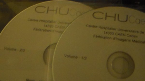 mes derniers DVD hospitalier