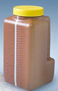 27 au 28 mars : Test d'urine de 24h !