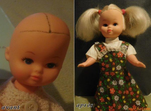 2 poupées réimplantées