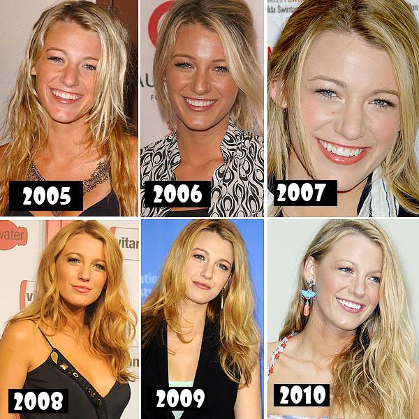 .. Voici Blake à Travers les Années de 2005 Jusqu'en 2010 , En quelle année tu la préfere ? ..