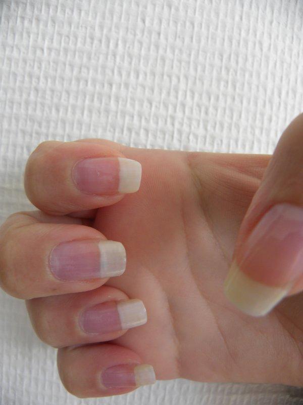 petite coupe sur mon ongles