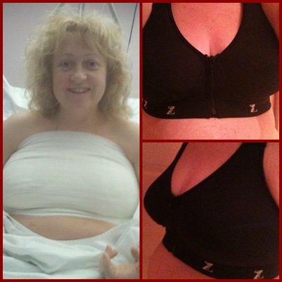 Ma réduction mammaire