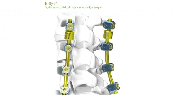 Chirurgie du dos: nouvel implant intervertébral
