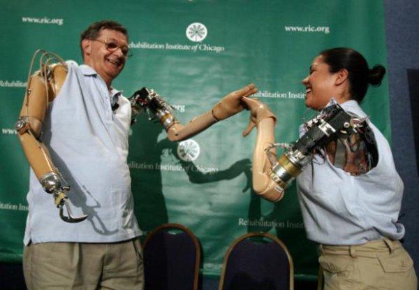 Le bras bionique contrôlé par la pensée au secours des personnes handicapées.