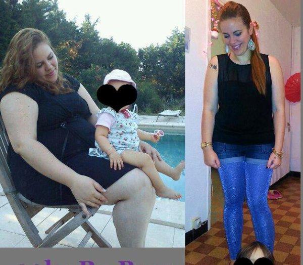 moins 40 kilos 18 mois post'op