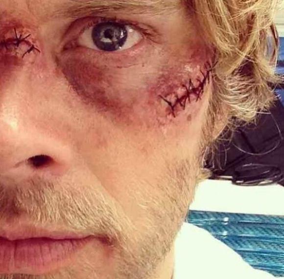 NCIS Los Angeles, saison 5 : Deeks salement amoché après la torture Spoiler !♥