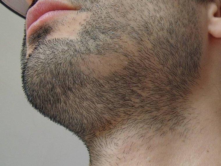 Mercredi 23 novembre 2011 (résumé des trois dernières semaines : diminution des ennuis, trous dans la barbe, mémoire en perdition)