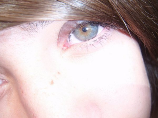 Mes yeux !