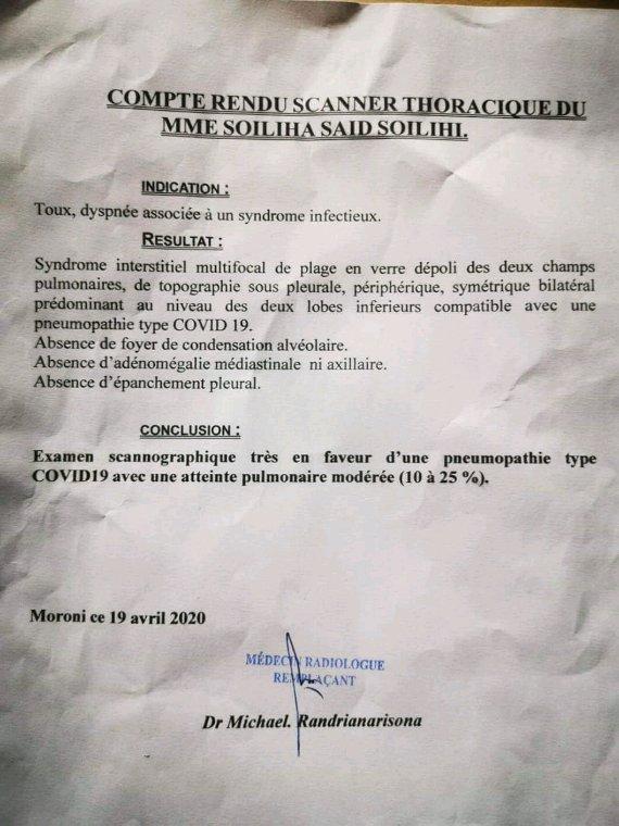 Compte rendu scanner de Coronavirus aux Comores