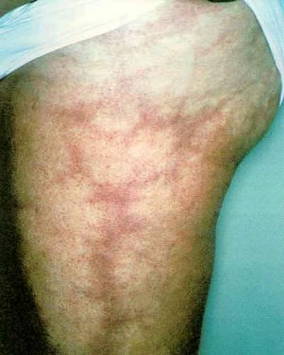 septicémie foudroyante