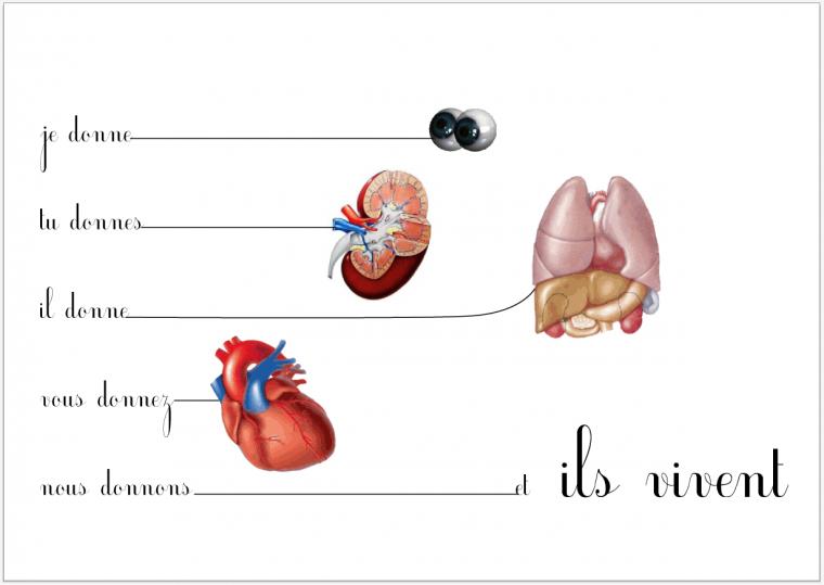 Notre exposé : Le don d'organe