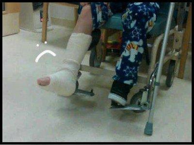 fracture De Justin