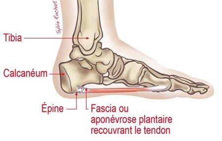 encore un souci de santé: épine calcanéenne sur chaque pied (:
