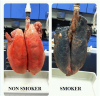 Say No To Smoking – The Difference Is Clear