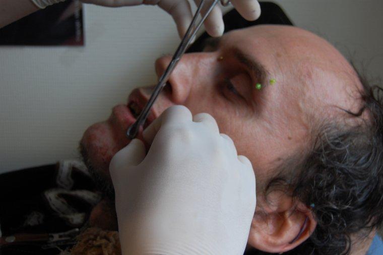 Psoriasis - Cranial Gangrène (Live Brooklyn Rouen)