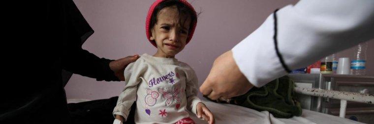 Dans l'enfer du Yémen, un enfant meurt toutes les 10 minutes