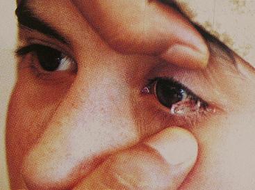 Hasna, la petite fille aux larmes de sang