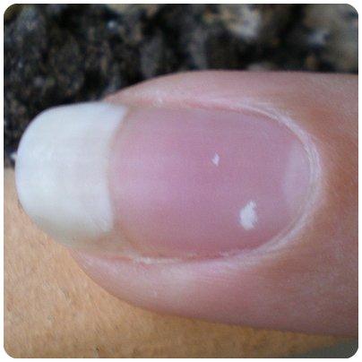 La pigmentation de la peau le temps de la grossesse