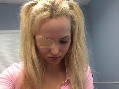 Dove Cameron s'est blessée à l'½il hier !