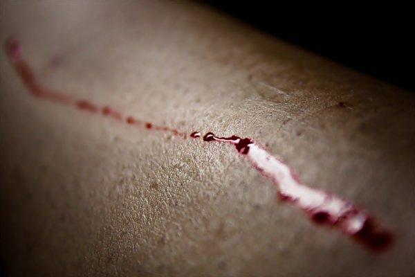 Blood Splashing. [Ouaip, c'est bien du sang.]