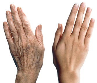 Pourquoi les personnes âgées ont-elles la peau froissée ?