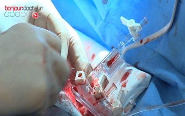 Stents, des ressorts au secours des artères