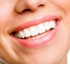 Le tartre (Détartrage et plaque dentaire)