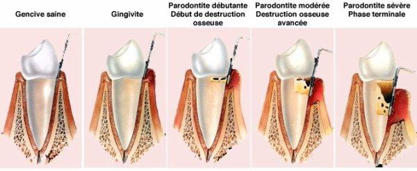 Les parodontites