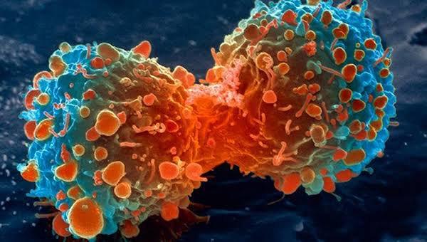 Même s'il existe des éléments permettant d'identifier un cancer avec une grande probabilité, le diagnostic de certitude ne se fait que sur analyse au microscope (anatomopathologie) d'un échantillon de la tumeur (éventuellement aidé par d'autres techniques comme le scanner, l'IRM voire parfois l'échographie). Cet échantillon vient soit d'une biopsie (simple prélèvement d'un morceau de la tumeur) qui peut être faite, suivant la localisation, suivant différentes procédures (fibroscopie, ponction à travers la peau…), soit d'une pièce opératoire (tumeur enlevée par le chirurgien).