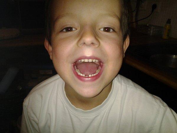Mon fils Bryan a perdus sa premiere dent lol