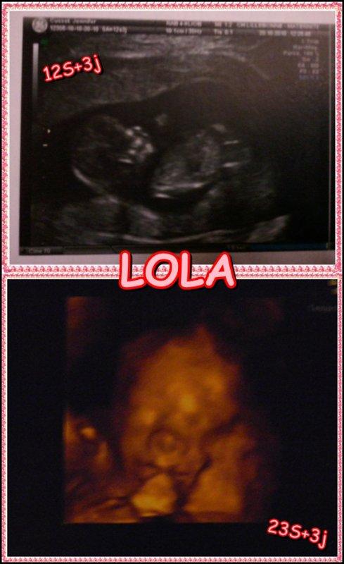 Notre bébé !