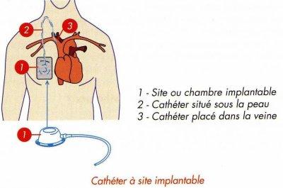 Quca cath ter et chambre implantable la vie de mlle j - Chambre implantable percutanee ...