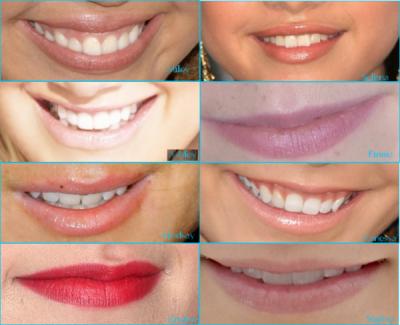 Qui a le plus beau sourire?