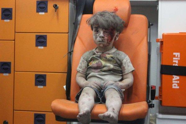 Syrie : 10 jours après la photo choc, nous avons des nouvelles du petit Omran