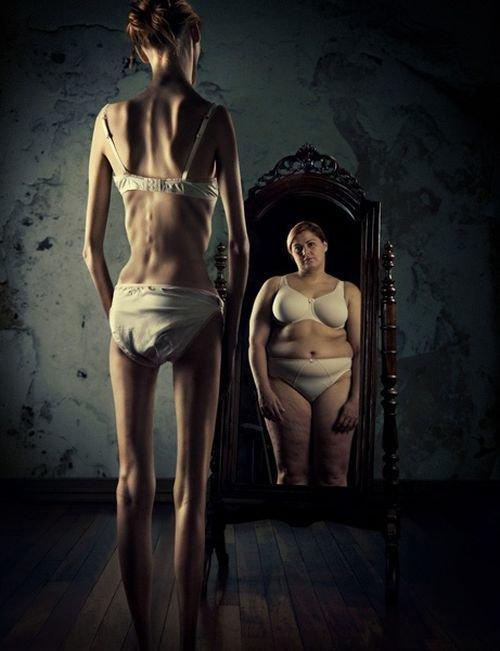 Chapitre 1 : l'Anorexie