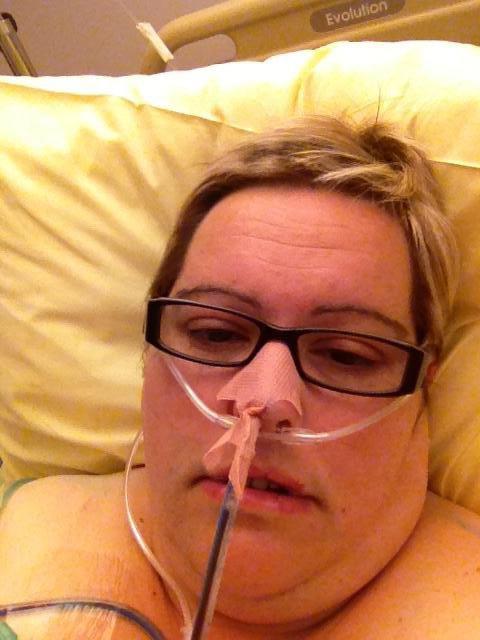 mon operation bypass + vesicule