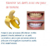 Blanchir ses dents avec une peau de banane
