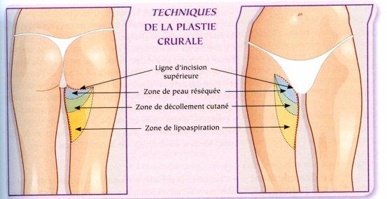 Traitement des varices et varicosit s 2 for Douleur interieur cuisse droite