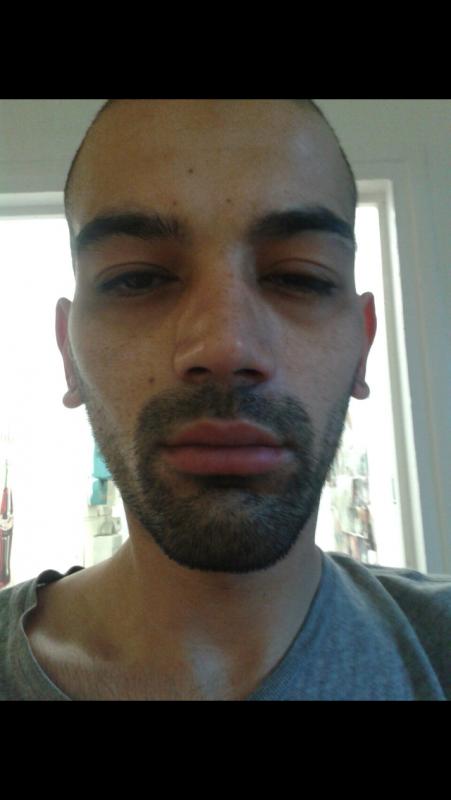 Karim est allergique