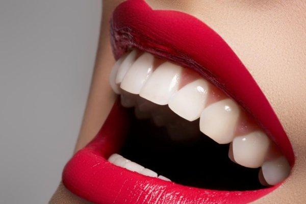 Astuce:Avoir des dents blanches