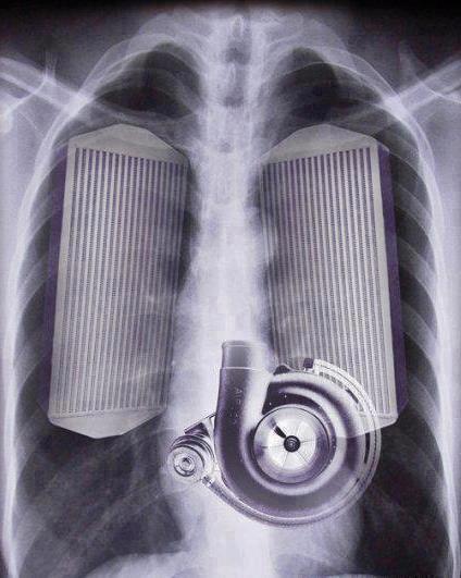 Radio de mon thoraxe