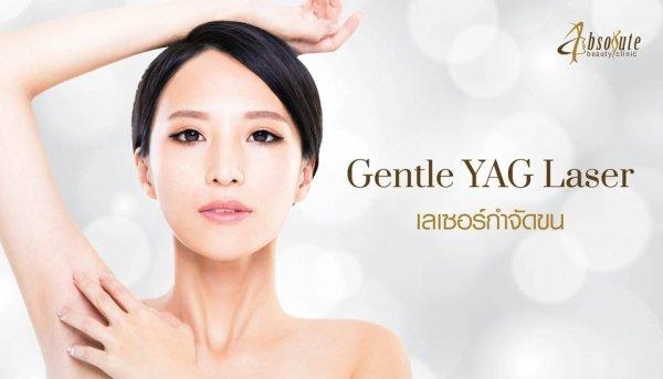Gentle YAG Laser