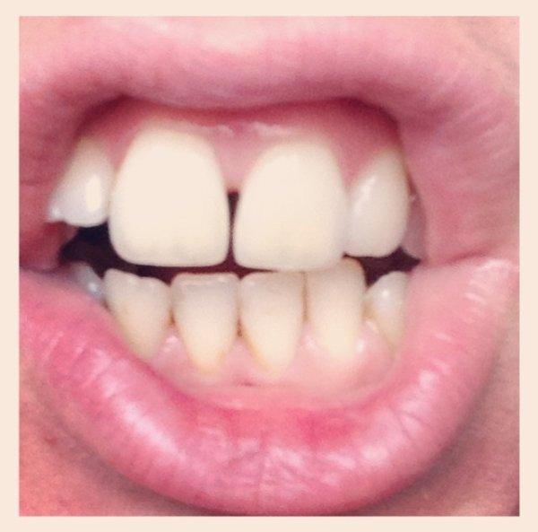 Bye les dents du bonheur !