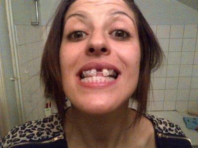 Bagues aux dents douleur