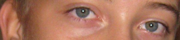 Trés beau yeux