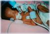 GPA: un bébé handicapé abandonné en GB