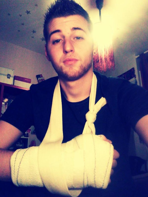 la main avec fracture et entorse lol :p