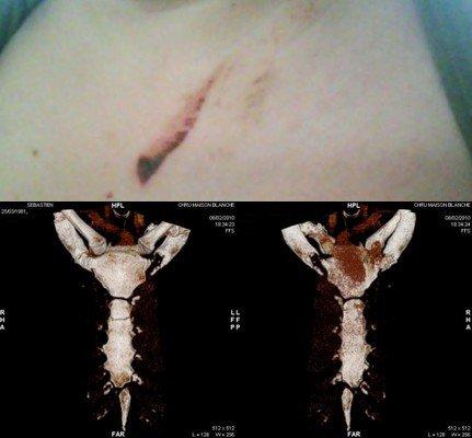 J'ai eu un traumatisme crânien une plaie a mon Genou droite une fracture du sternum et hématome du a la ceinture de sécurité