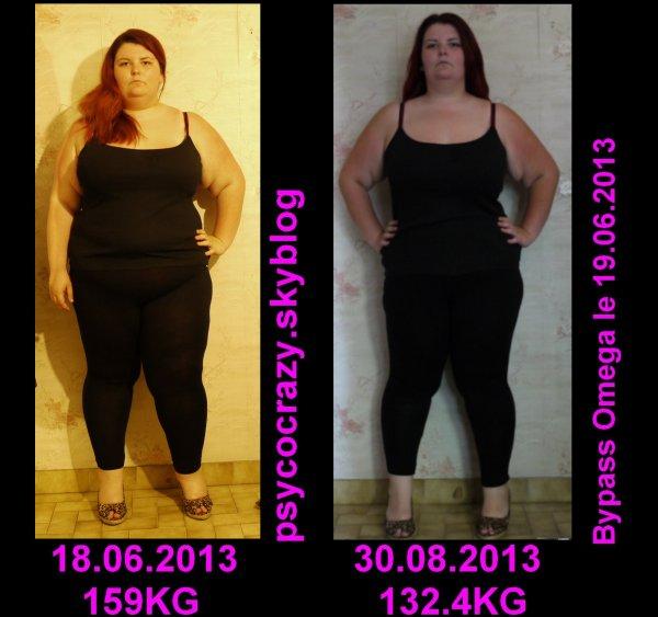 Photo comparatif post opération et 2 mois et demie post op